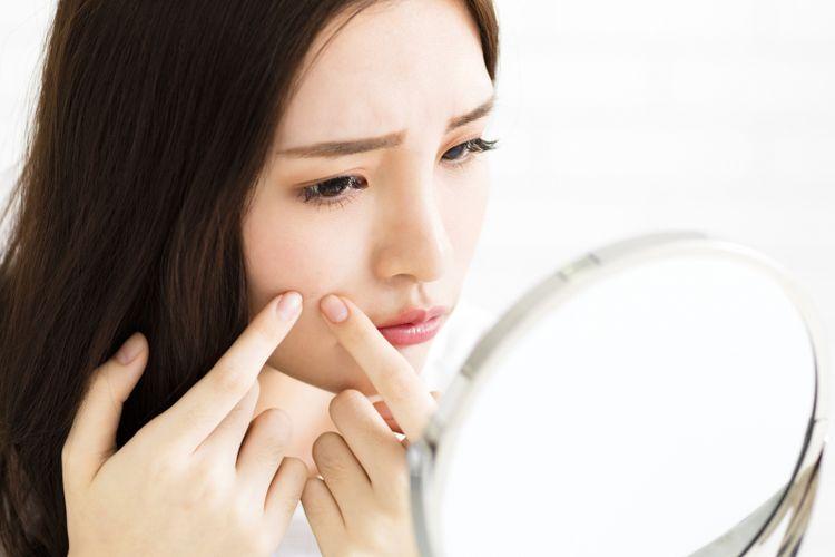 cara perawatan wajah berjerawat